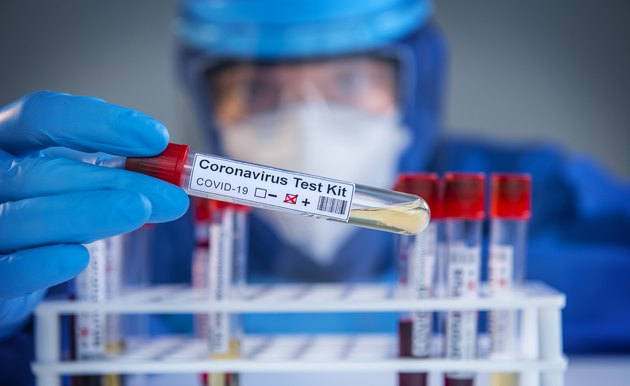 Examining coronavirus COVID 19 medical samples on kits novel corona virus outbreak